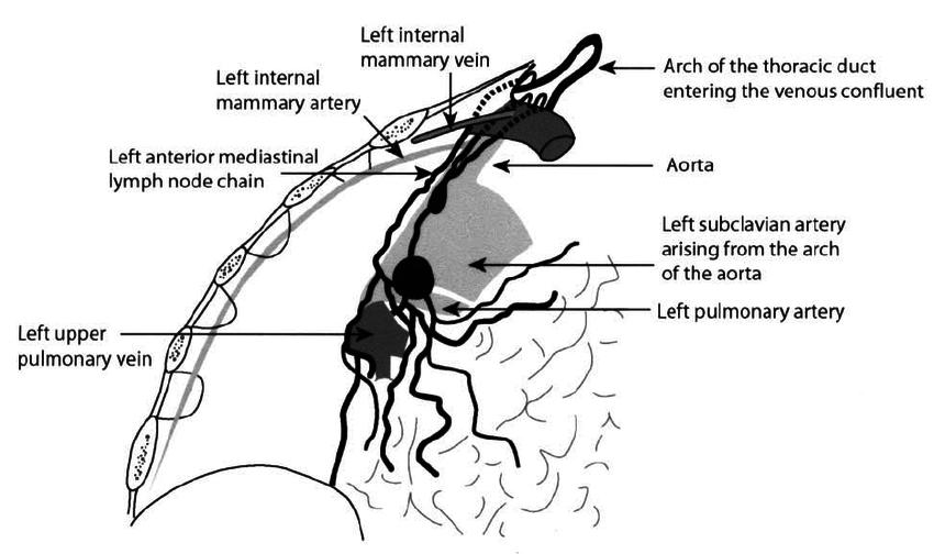 diagram of chylothorax