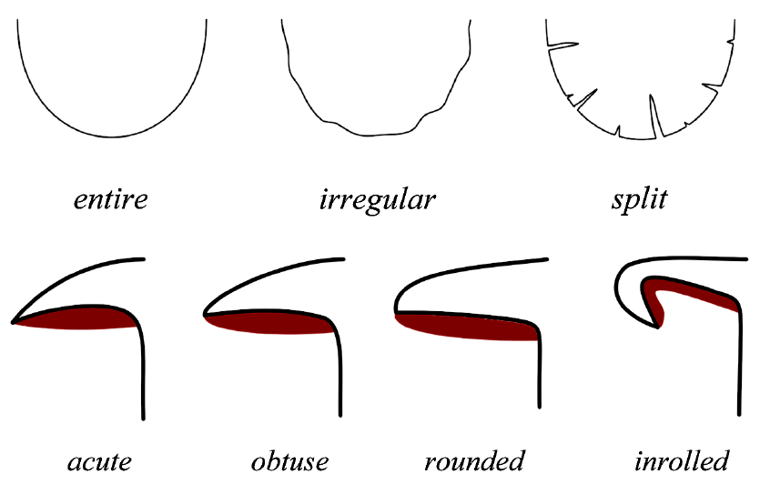 deep pimple diagram