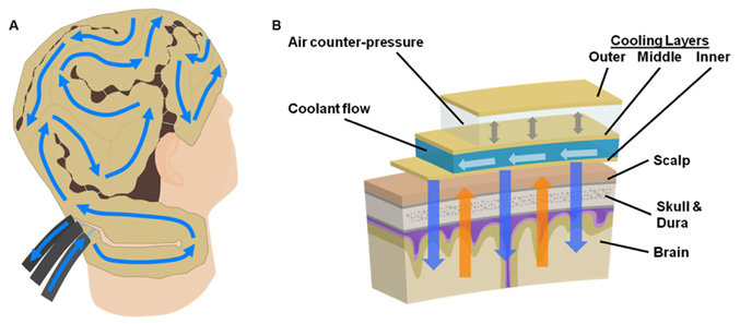 Diagram of coolant flow and the integrated layers of head-neck
