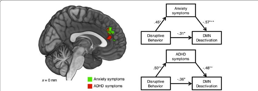 diagram of adhd brain