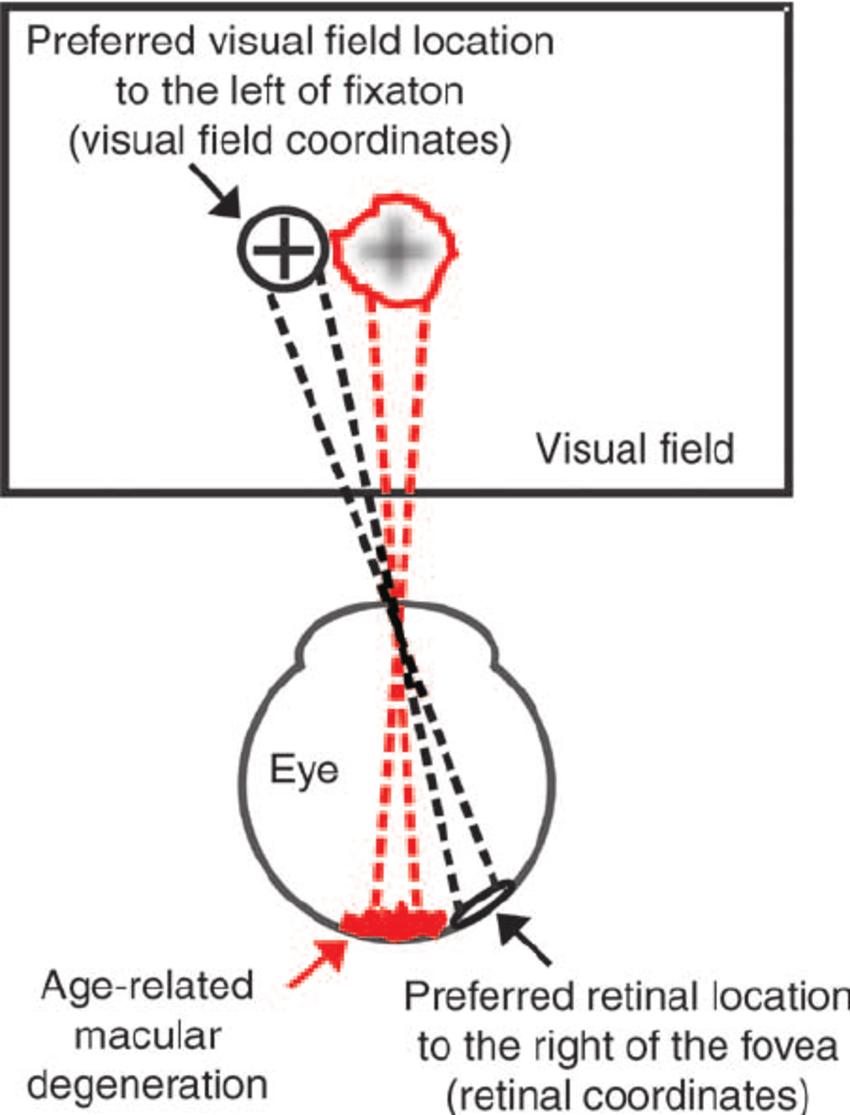 macular degeneration eye diagram