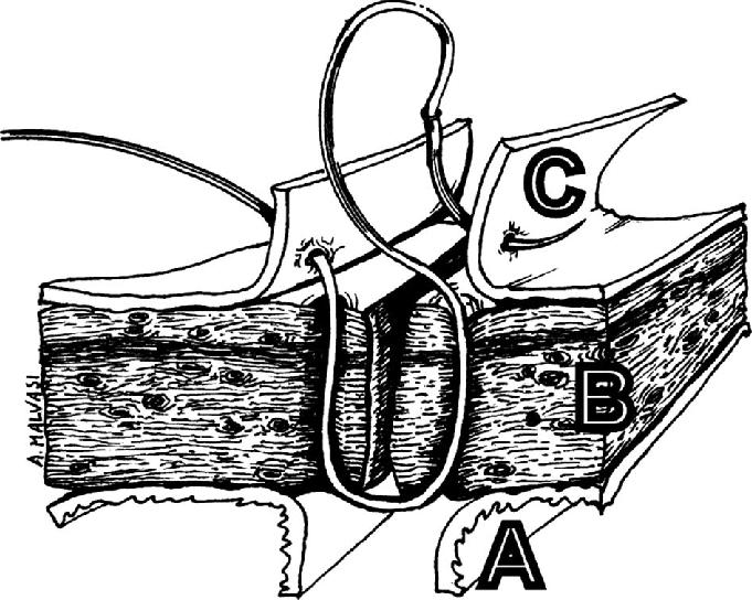 uterine wall diagram