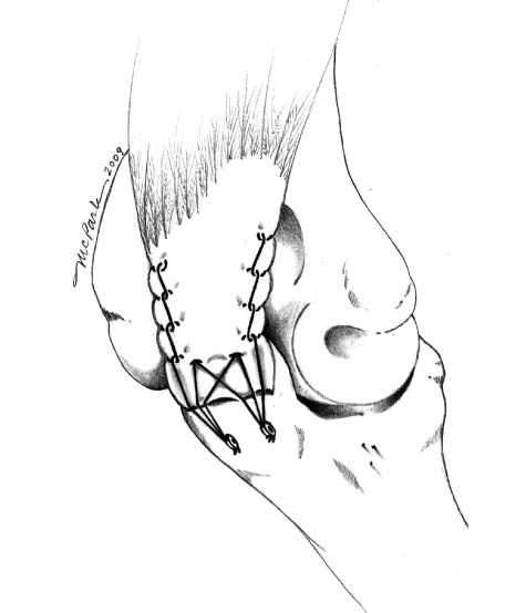 triceps tendon diagram