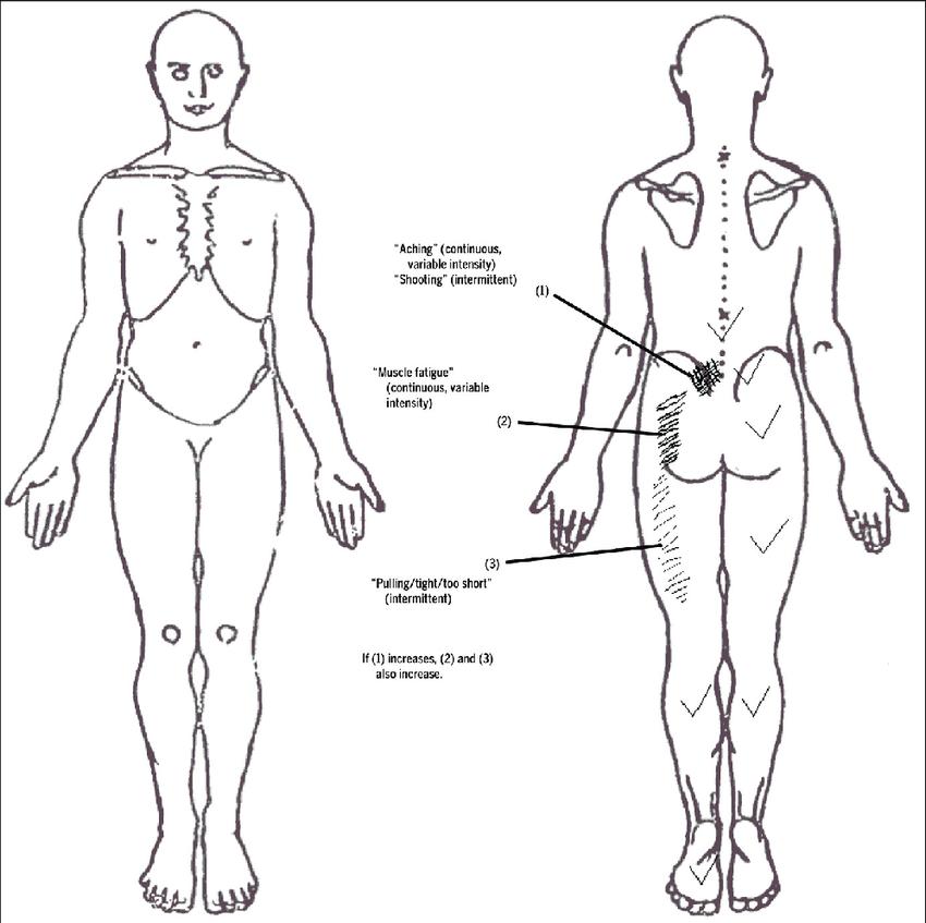 human body pain diagram