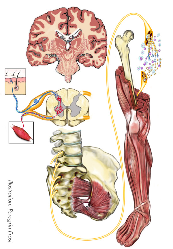 Schematic drawing of a sciatic nerve at mid-thigh level with the