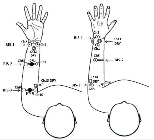 Anatomical Position of the left-arm bipolar leads, using the dry