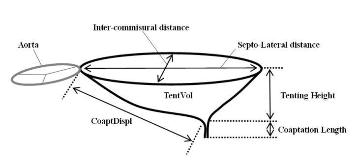 diagram of the mitral valve