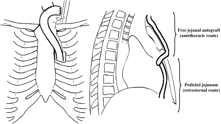 esophageal cancer diagram