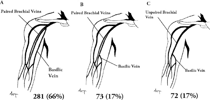 brachial vein diagram