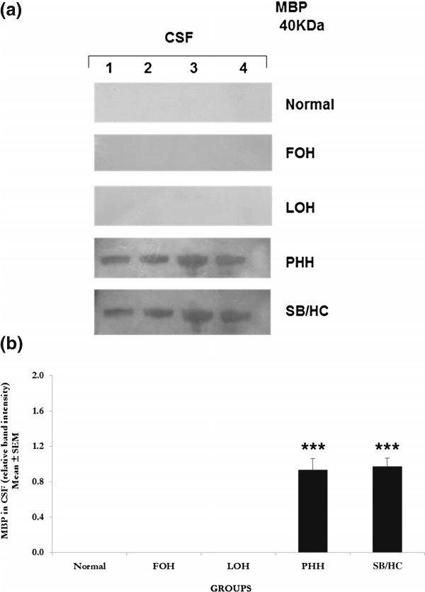 Western blot analyses for myelin basic protein (MBP) a Western - western blot
