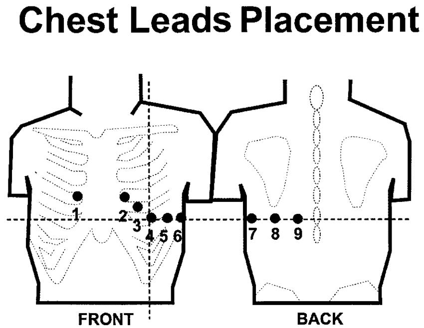 posterior ecg lead placement diagram