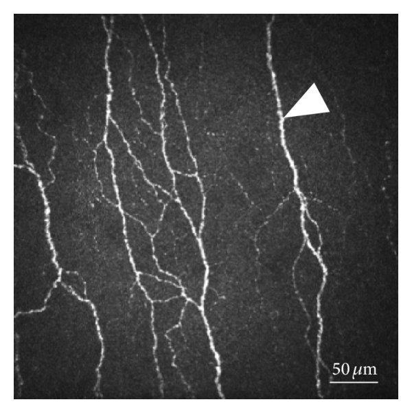 In vivo confocal microscopic images of corneal dendritic (Langerhans