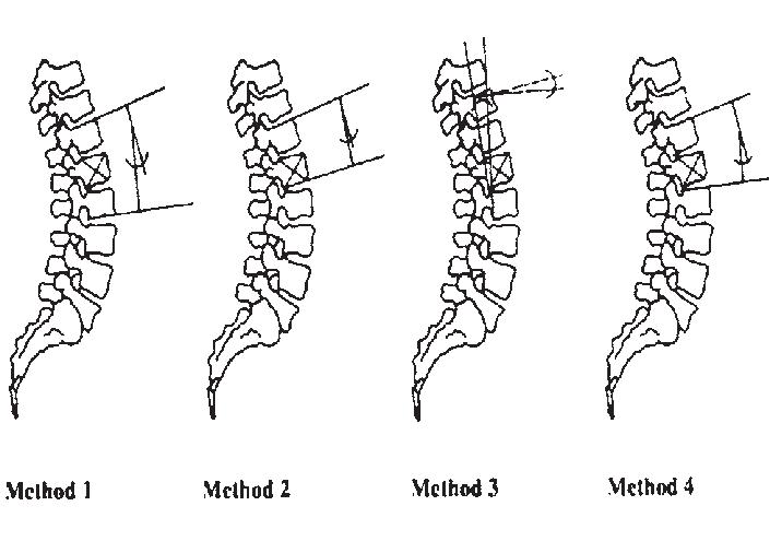 diagram of vertebral fracture