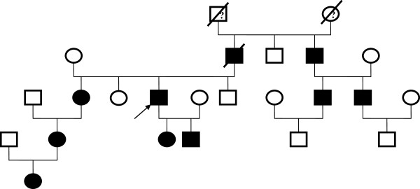 Family tree of Case 1 patient (Arrow) affected proband with