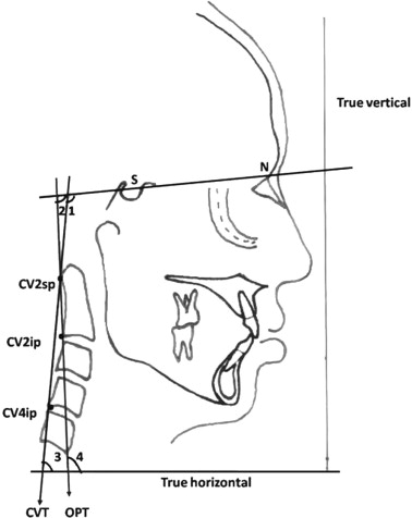 Postural measurements reference points N; nasion, S; sella, Cv2sp - point of reference