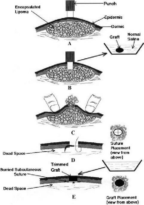 periosteum diagram
