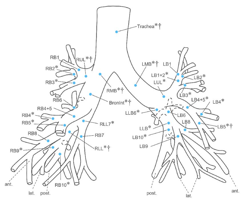 bronchus diagram