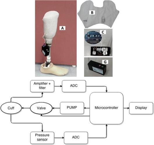 The Pirouzi\u0027s dynamic socket for transtibial amputees (b