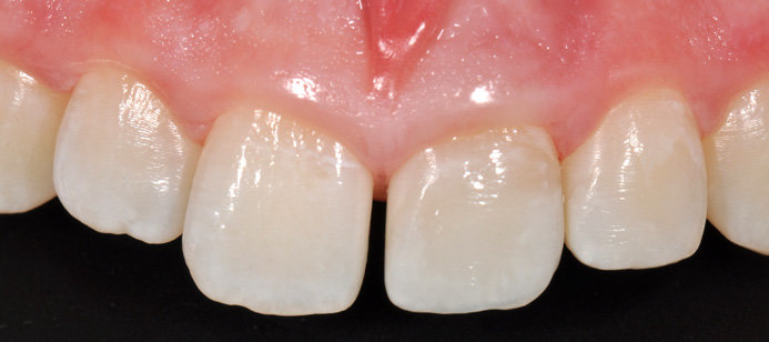 a,b) Direct composite restoration of two fractured incisors