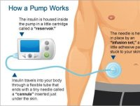 Working of an insulin pump