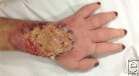 Longstanding, nonhealing, infected wound to the dorsum of ...