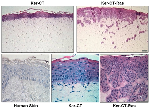 While Ker-CT keratinocytes remain as a surface epithelium on the - Keratinocytes