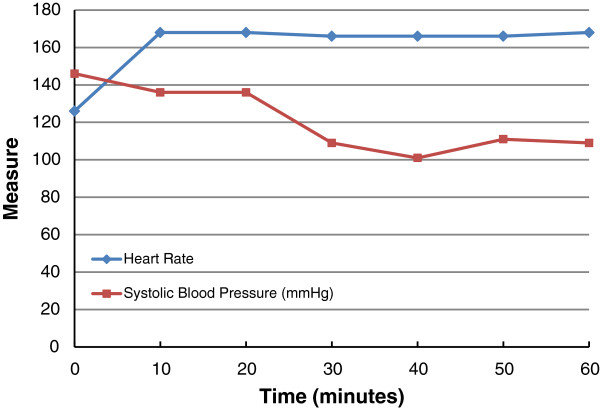 Graph of pulse rate and systolic blood pressure (SBP) as a function