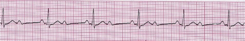 Second-degree AV block with 21 conduction The QRS complex is