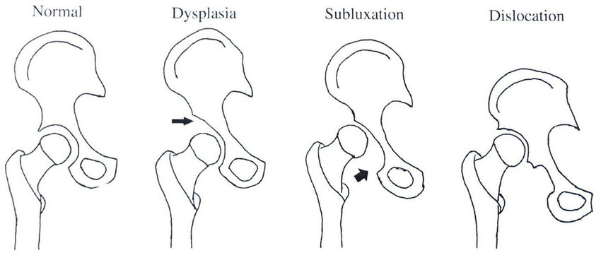diagram of dysplasia