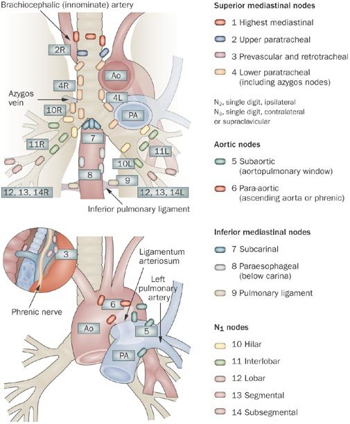 Mediastinal lymph node stations, according to American Thoracic