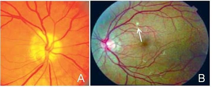 Presumed Ocular Histoplasmosis - Histoplasmosis In Eyes