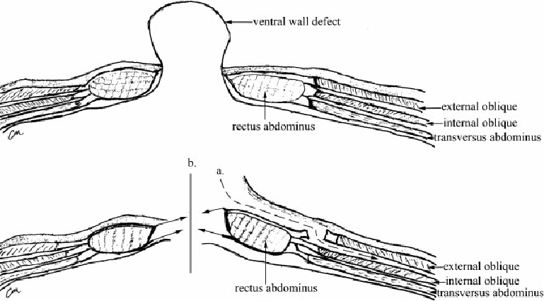 layers of abdominal wall diagram