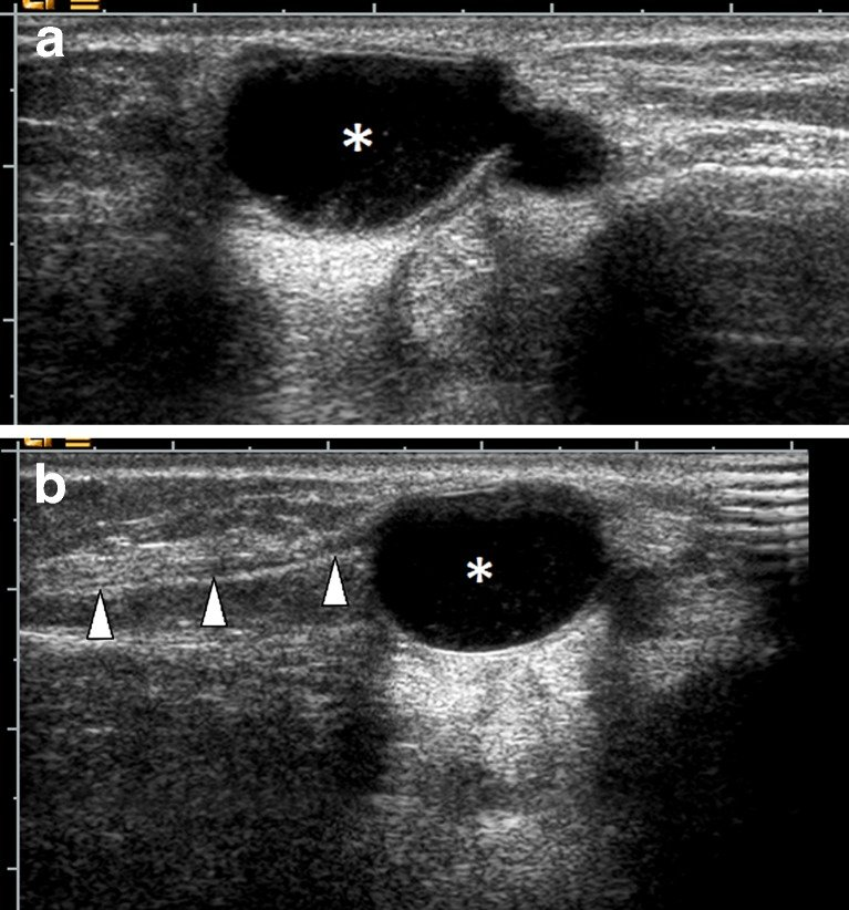 Synovial cyst A 34-year-old female patient with lateral foot pain