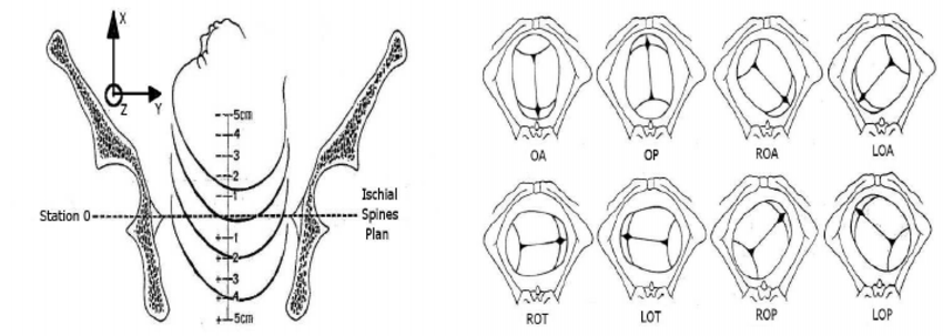 diagram of fetal head