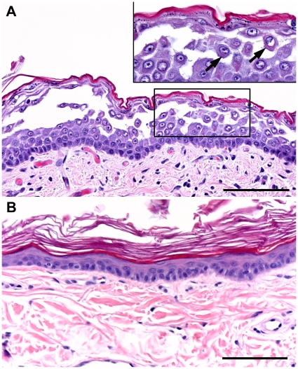 Panel A coalescing keratinocyte acantholysis disrupts epidermal - Keratinocytes