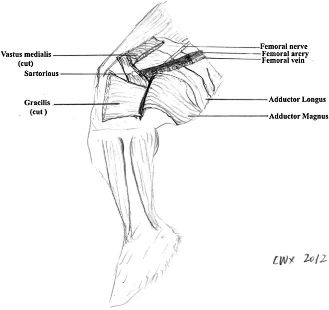 leg vein diagram