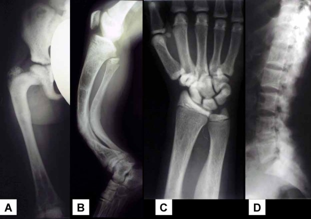 Radiographs of patient 1 obtained between 1952 and 1969 (A) Severe