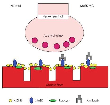 Simplitied illustration of neuromuscular junction in normal and - neuromuscular junction