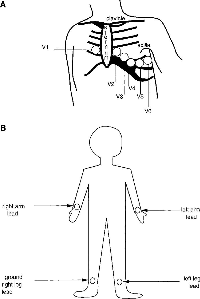 ecg leads diagram