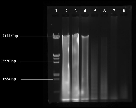 Agarose Gel Electrophoresis Of Metagenomic Dna Isolated By