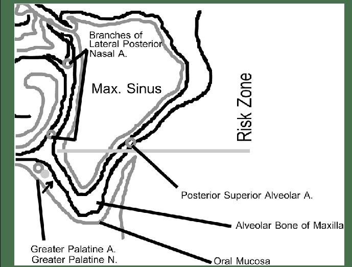 alveolar ridge diagram