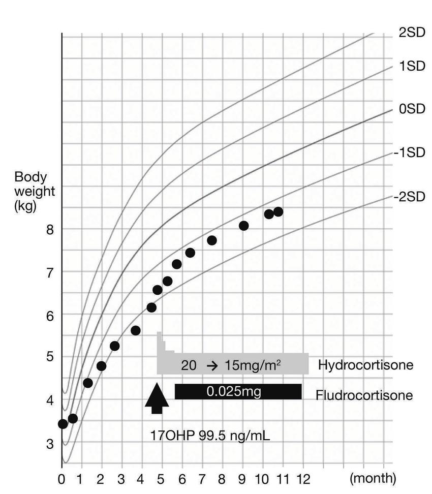 cah enzyme diagram