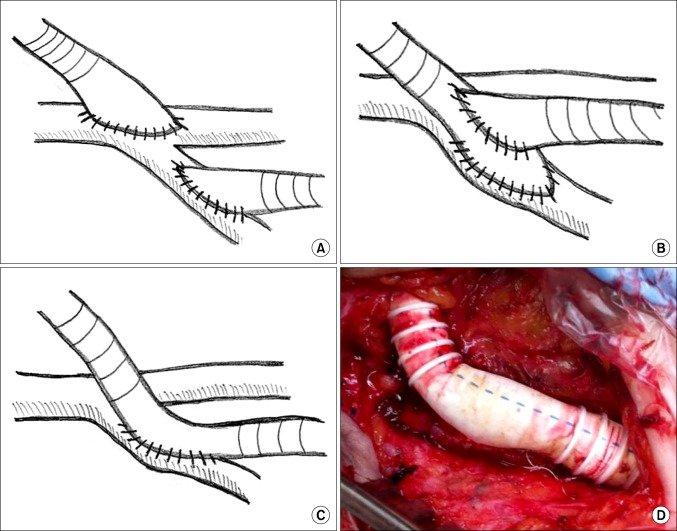 Anastomosis configurations on recipient femoral artery during