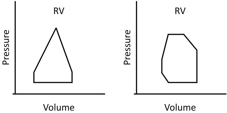 Pressure-volume (P-V) loops for RV and LV Once RV pressure reaches