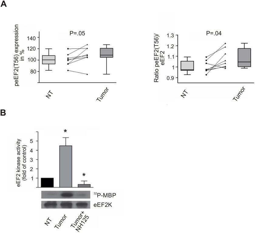 eEF2 kinase activity is increased in HCC tissue samples peEF2(T56