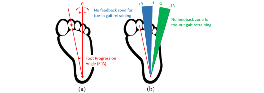 A The Foot Progression Angle Fpa Is Defined As The Angle
