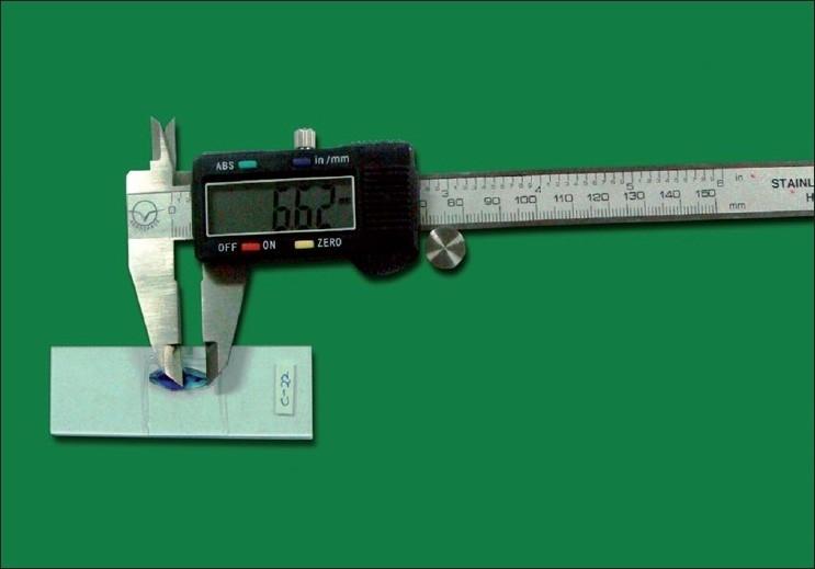 Length determination of the translucent zone using digital vernier