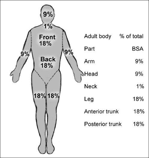Rule of Nines\u201d as in adults Download Scientific Diagram