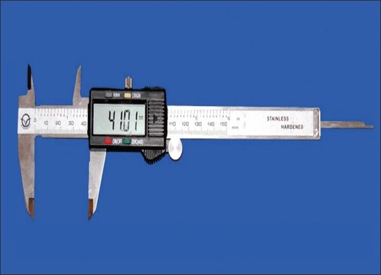 Digital vernier caliper Download Scientific Diagram