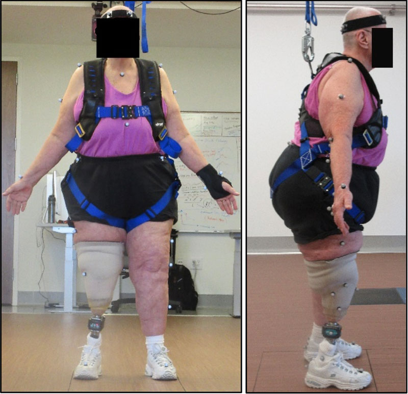 Quantitative Assessment of Walker-Assisted Gait in Transtibial Amputees